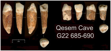400,000 year old teeth